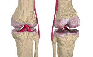 Rafforzare cartilagine e legamenti in modo naturale