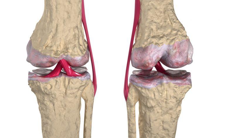 Come rafforzare legamenti e cartilagini (in modo naturale)