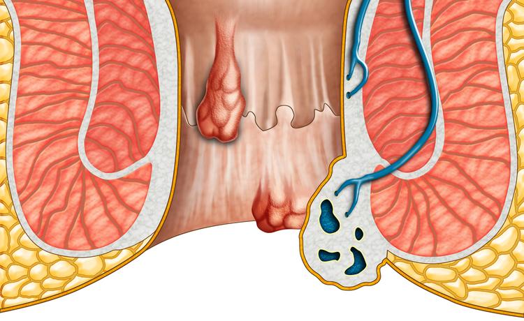 Cosa mangiare con le emorroidi e cosa evitare