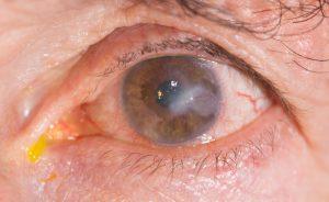 Cause della cheratite, l'infiammazione della cornea