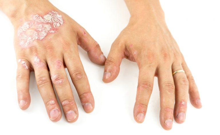 Psoriasi e malattie cardiache: il legame (positivo)