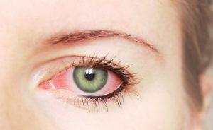 Le macchie occhi rossi