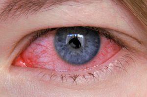 Tutto sulle allergie oculari