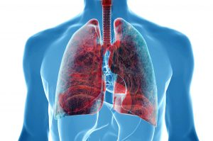 Quali sono i Fattori di rischio del tumore al polmone?