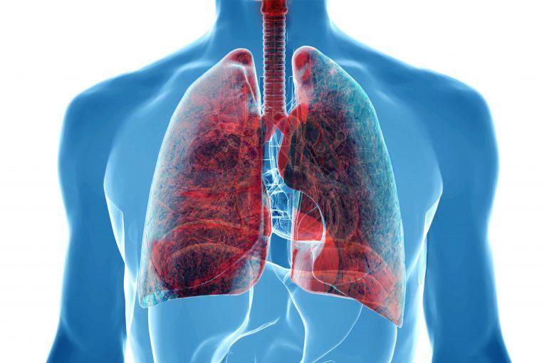 Il fumo di sigaretta non è l'unica causa di tumore al polmone, anzi