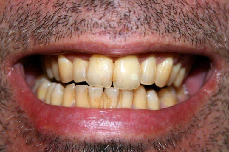 Sotto accusa i prodotti per sbiancare i denti: i risultati di una nuova ricerca