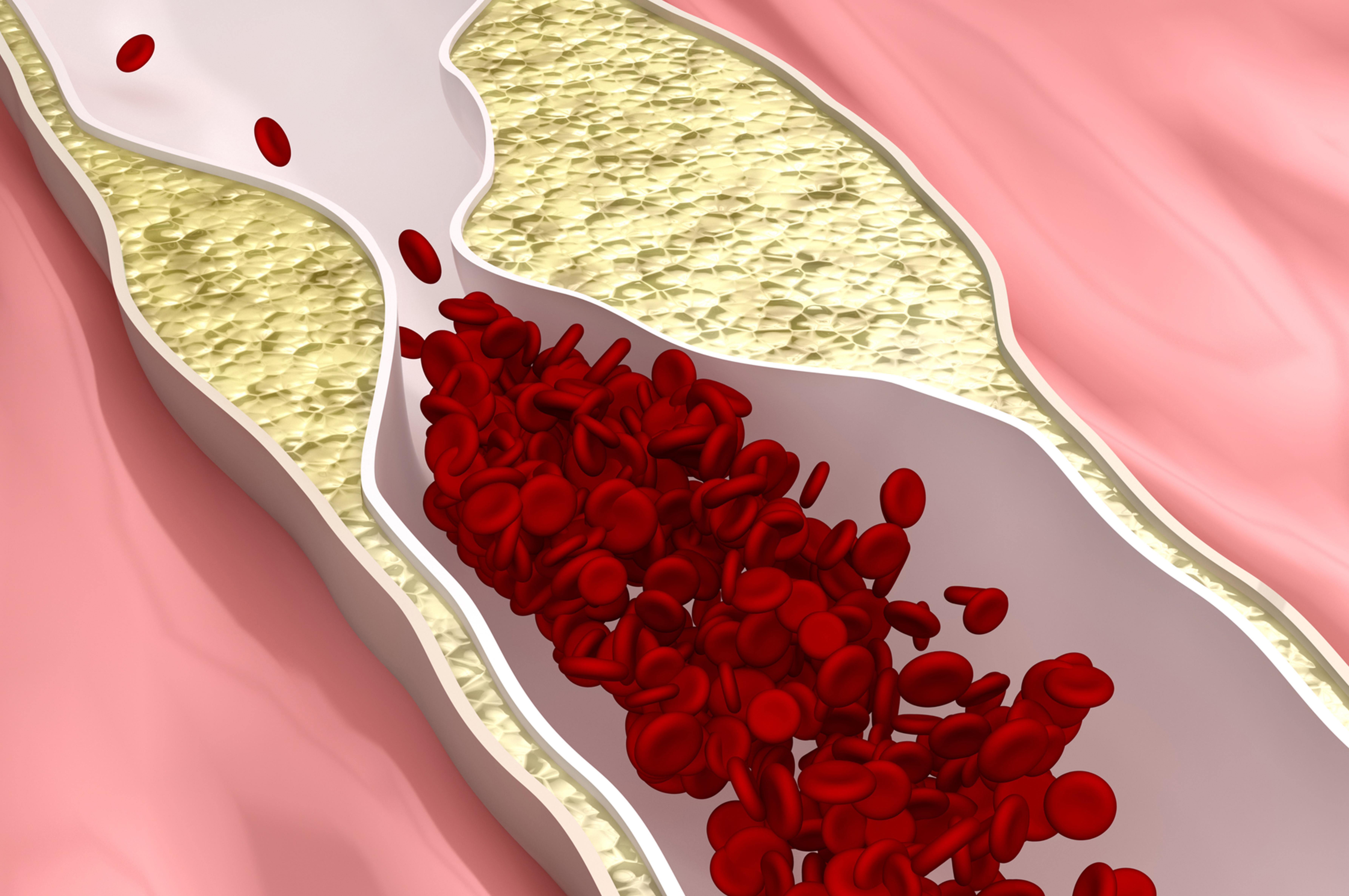 Colesterolo alto? Si rischia l'Alzheimer precoce