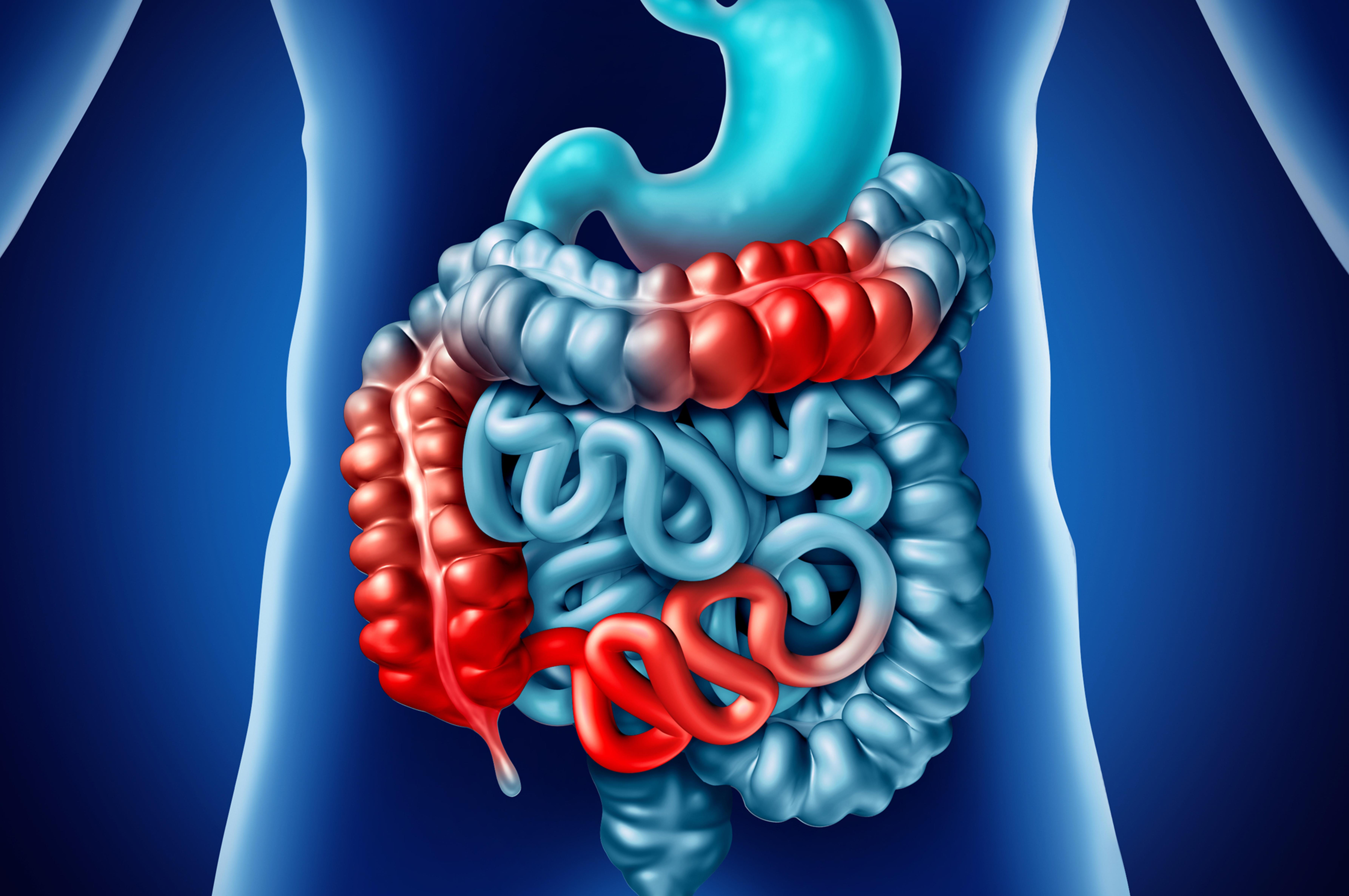 Crohn e colite: novità sull'uso di alcuni farmaci