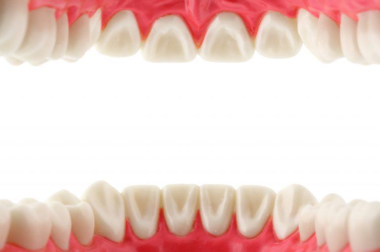 Cosa fare per i denti che si muovono