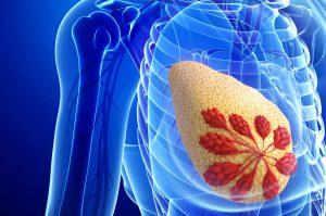 Microcalcificazioni al seno: cosa fare?