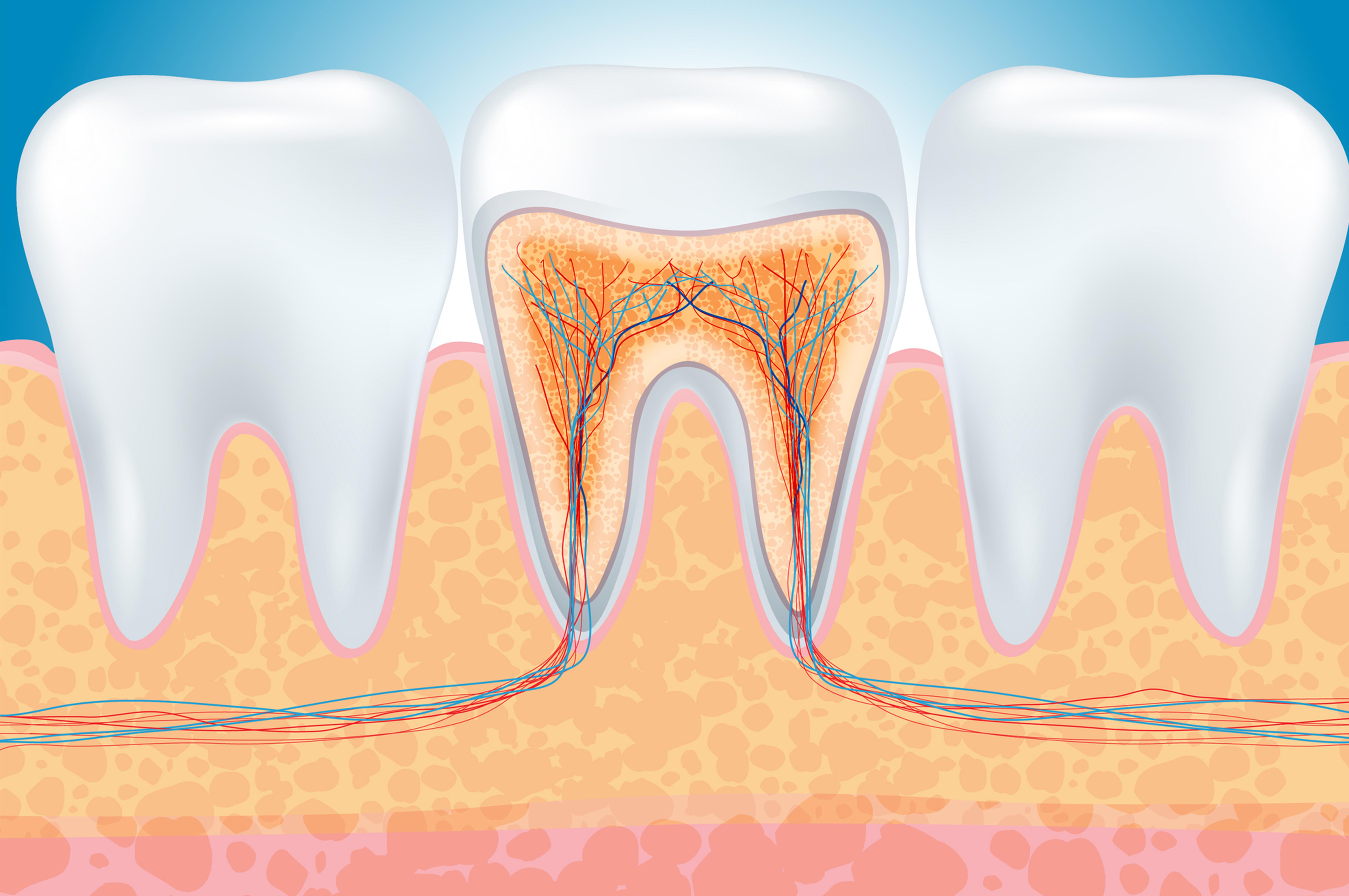 Rimedi naturali contro il mal di denti? Un elenco dei più efficaci