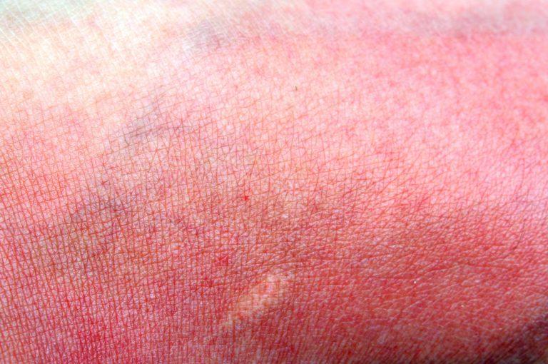 Siete certi di proteggere dal sole anche queste tre aree del viso?