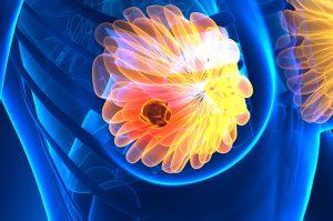 Talazoparib per il Trattamento del Tumore al seno