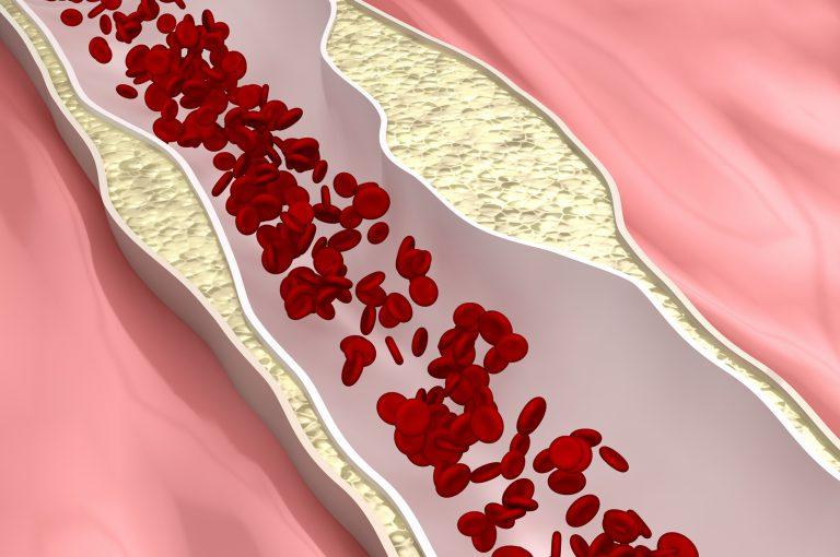 Aterosclerosi, individuato un nuovo fattore di rischio