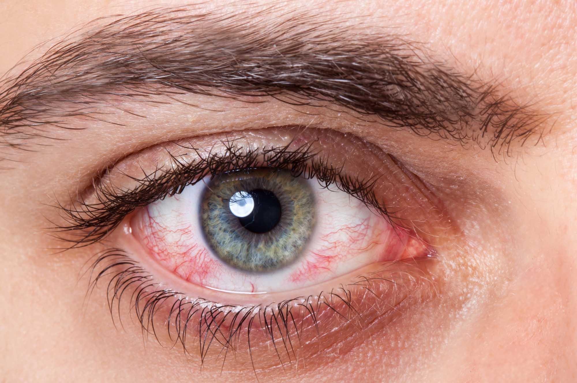 Occhi rossi e lacrimazione: il vero o falso sulla rinocongiuntivite allergica