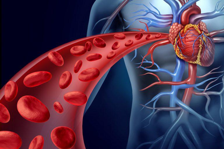 Ferro: ok, ma concentrazioni elevate aumentano il rischio di ictus