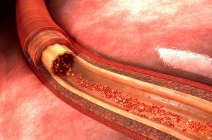 Acido Urico e Fruttosio: il Legame