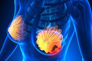 Tumore al seno e Aspirina: quale correlazione?