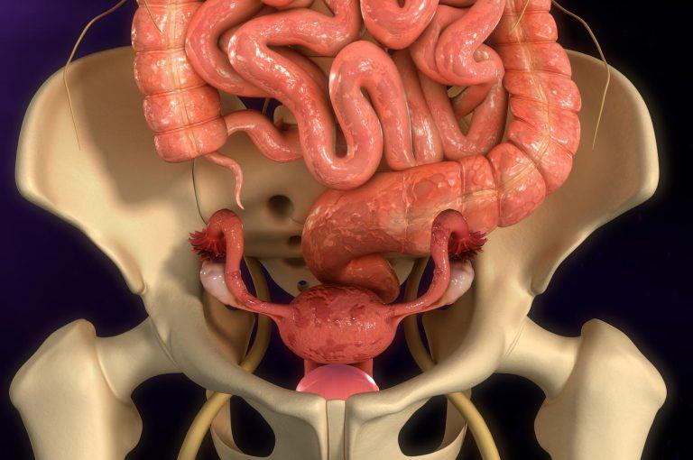 Endometriosi: i cibi sì e i cibi no per contrastare l'infiammazione