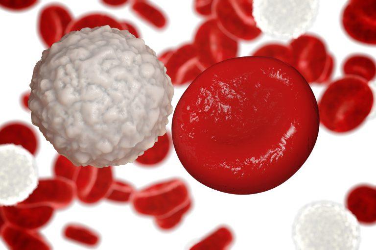 Oggi dalla Leucemia Mieloide Cronica si può guarire