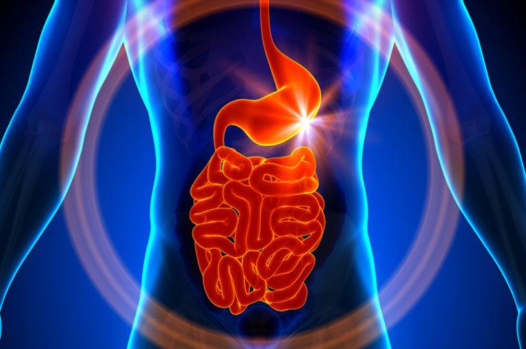 Infarto intestinale, come riconoscerlo in tempo
