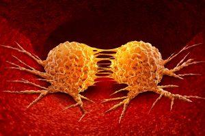 Test Diagnosi Tumore al Seno