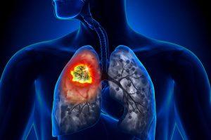 Tumore al Polmone: Cure, Sintomi e Rischi