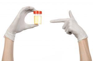 Esame delle urine: come leggere l'esame