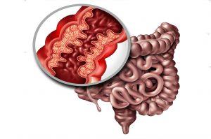 Malattie di Crohn: il Legame con l'Ansia