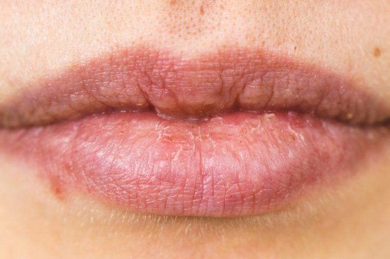 I rimedi più efficaci per le labbra screpolate